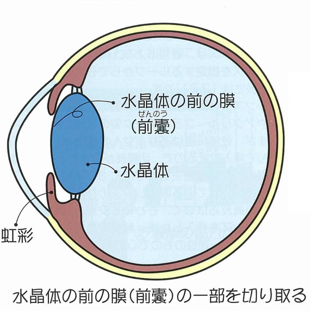 超音波乳化吸引術:水晶体の前の膜(前嚢)の一部を切り取る