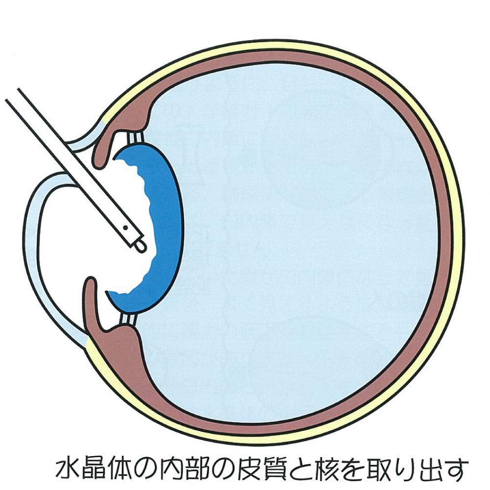 超音波乳化吸引術:水晶体の内部の皮質と核を取り出す