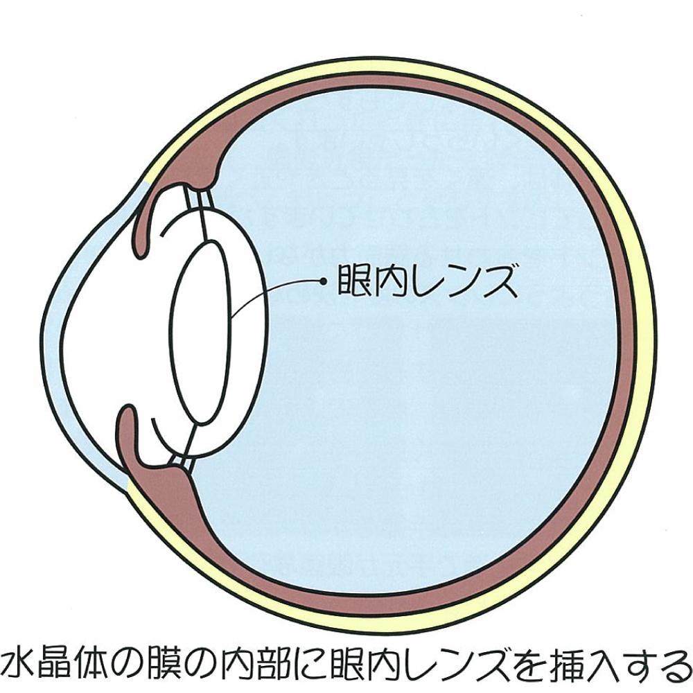超音波乳化吸引術:水晶体の膜の内部に眼内レンズを挿入する
