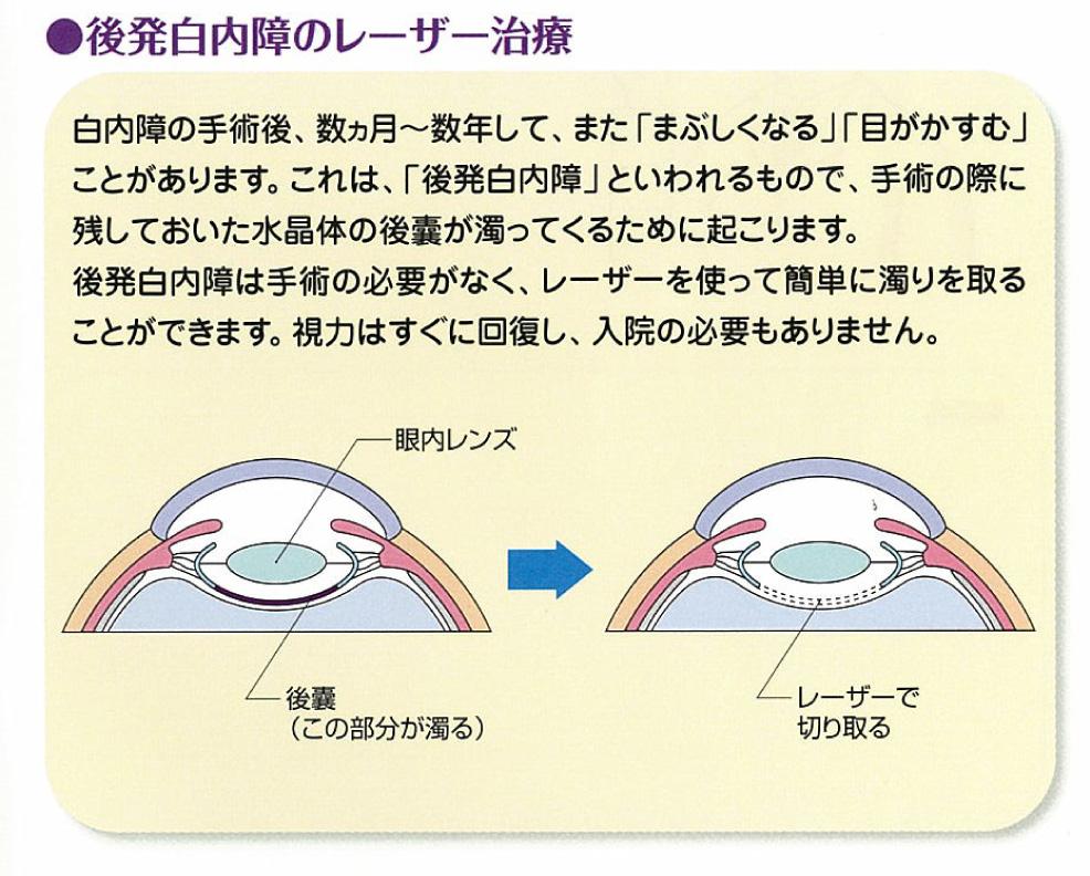 後発白内障のレーザー手術
