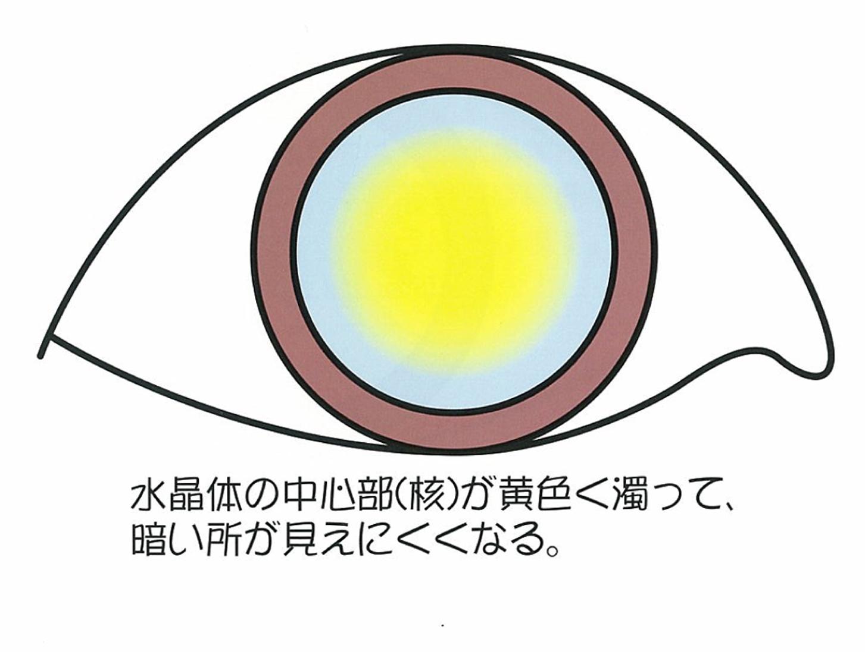 加齢性白内障の症状:暗くなると見えにくくなる