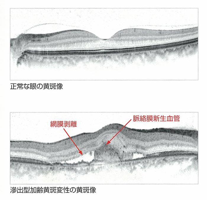 網膜断層検査(光干渉断層計)