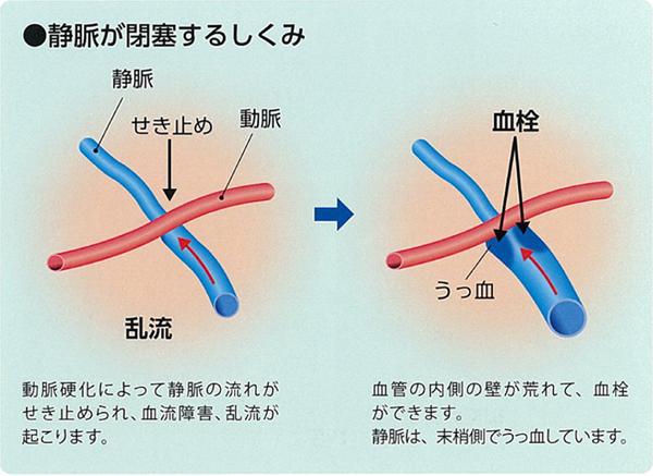 なぜ網膜の静脈が閉塞するのか