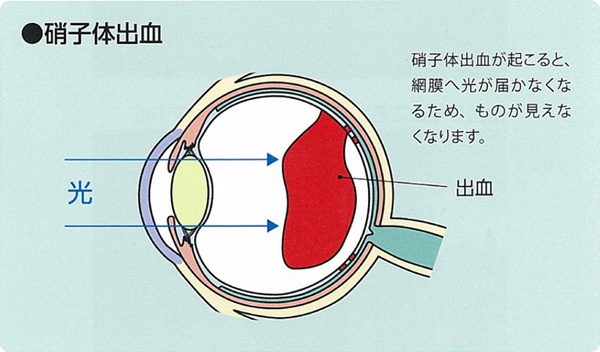 網膜静脈分枝閉塞症(BRVO)の経過と治療