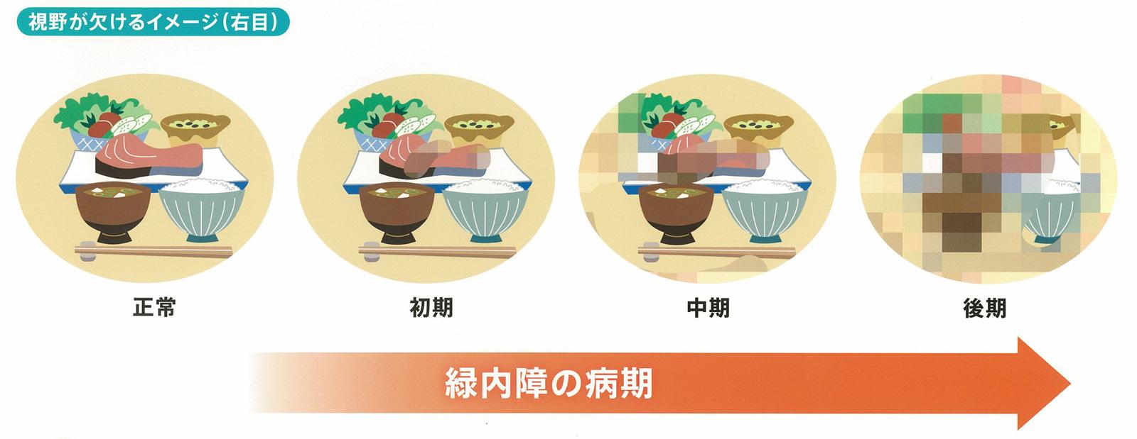 視野が欠けるイメージ(右目)