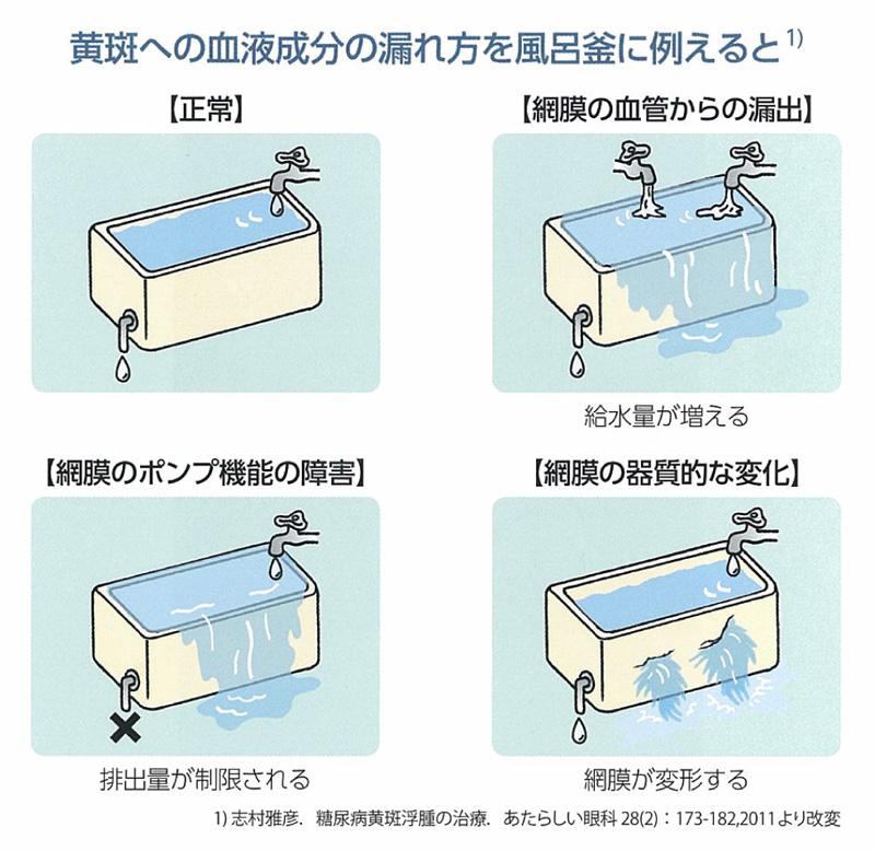 黄班への血液成分の漏れ方を風呂釜に例えると